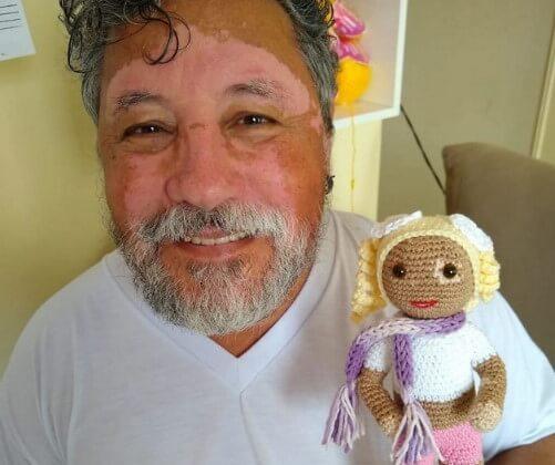 bonecas vovo4 1 - Vovô com vitiligo faz bonecas de crochê para que crianças se sintam bem com a aparência