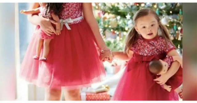 SD 3 - Menininha de 4 anos com síndrome de Down torna-se modelo de campanha de Natal