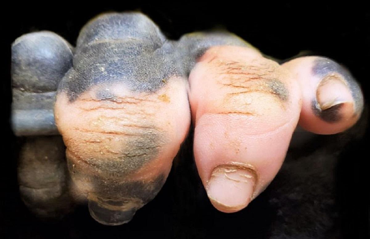 closeup gorilla hand pink white pigmentation anaka zoo atlanta 1 2 5e03256340bfe  700 1 - Um gorila nascido com falta de pigmentação nos dedos surpreende as pessoas com um detalhe curioso