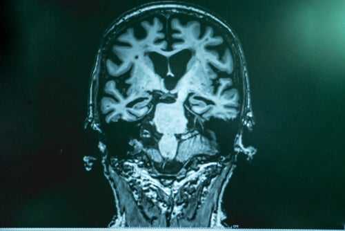 cerebro enfermedad alzheimer - Uma nova maneira de tratar a doença de Alzheimer - Dr. Francisco Lopera