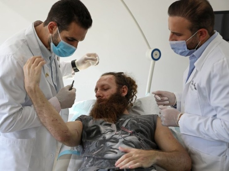 1 1 - Médico oferece cirurgias reconstrutivas gratuitas para vítimas de Beirute. Uma ajuda após a explosão
