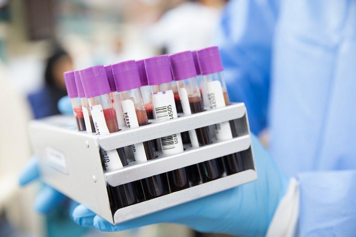 blood 4944423 1280 scaled - Novo exame de sangue para detectar câncer de próstata com precisão de 99%