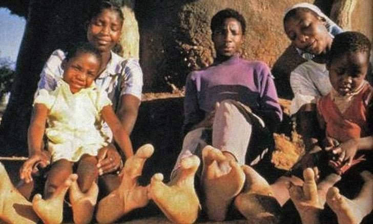1 4 - Os pés dos membros dessa tribo africana são como garras de avestruz. Eles só têm dois dedos