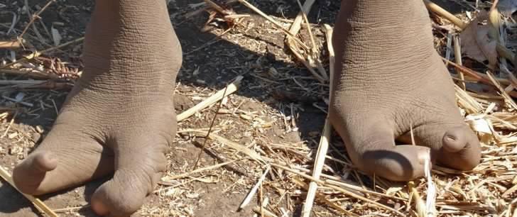 2 4 - Os pés dos membros dessa tribo africana são como garras de avestruz. Eles só têm dois dedos