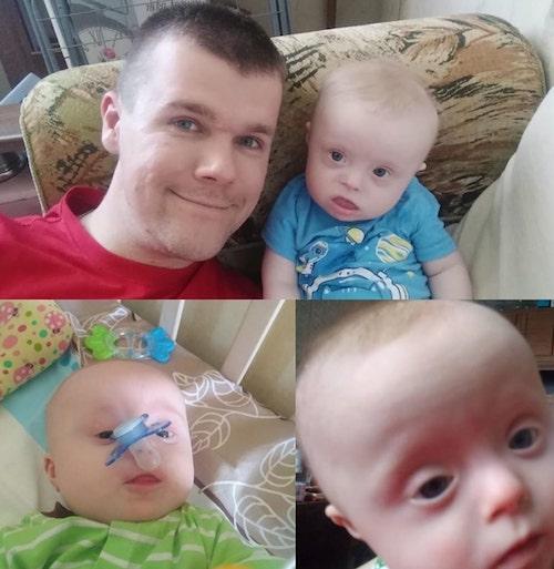 6 2 - Mãe pretendia dar bebê com Síndrome de Down para adoção, pai decidiu cria-lo sozinho.