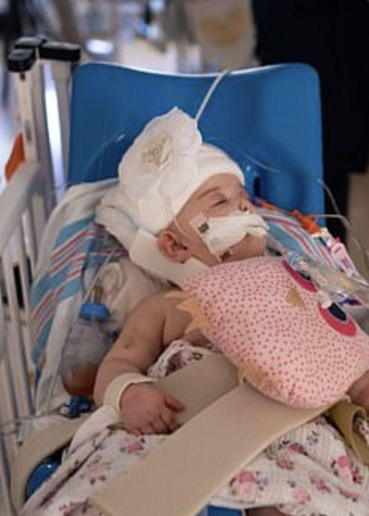 Captura de Pantalla 2020 10 30 a las 11.57.13 - Gêmeas siamesas passaram por uma cirurgia de 24 horas. Graças a Deus e aos médicos foi um sucesso!