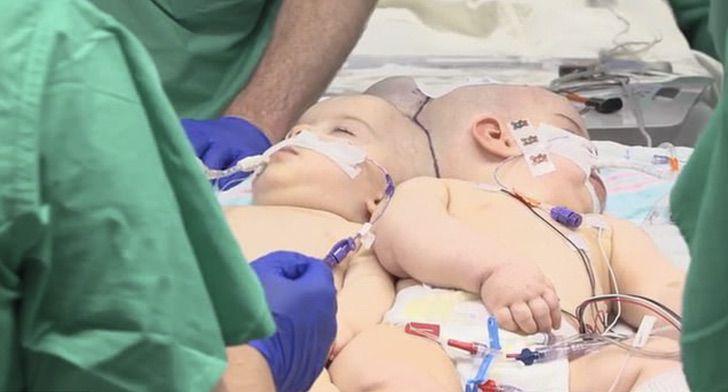 Captura de Pantalla 2020 10 30 a las 11.58.12 - Gêmeas siamesas passaram por uma cirurgia de 24 horas. Graças a Deus e aos médicos foi um sucesso!