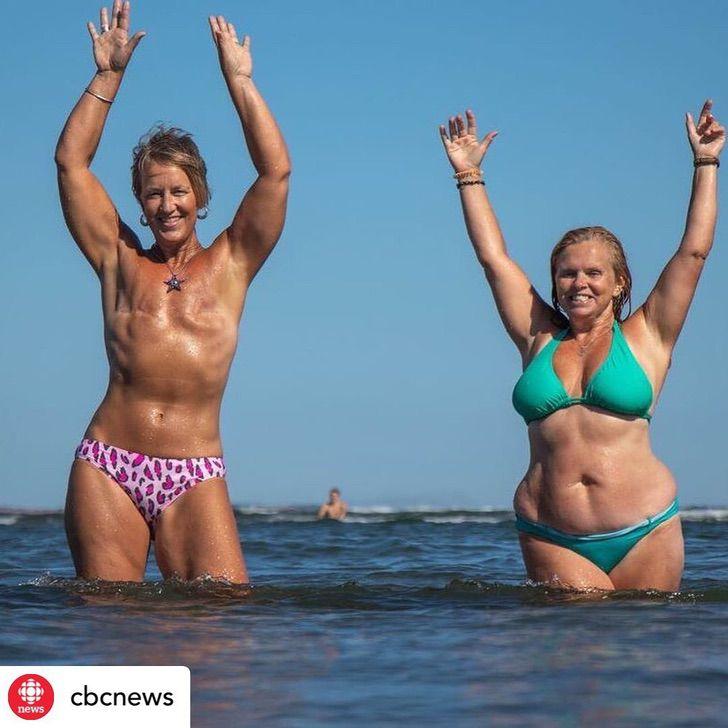 """11 2 - """"Seios não me definem como mulher"""": ela lutou contra o câncer e o venceu e sabe ser feliz com seu corpo"""