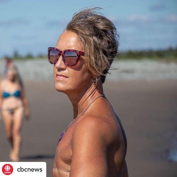 """12 2 - """"Seios não me definem como mulher"""": ela lutou contra o câncer e o venceu e sabe ser feliz com seu corpo"""