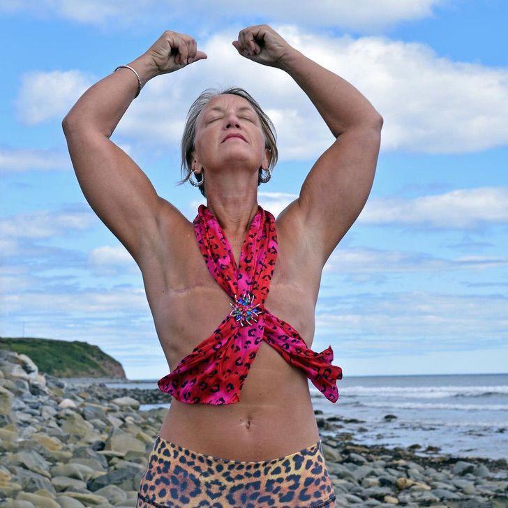 """14 2 - """"Seios não me definem como mulher"""": ela lutou contra o câncer e o venceu e sabe ser feliz com seu corpo"""