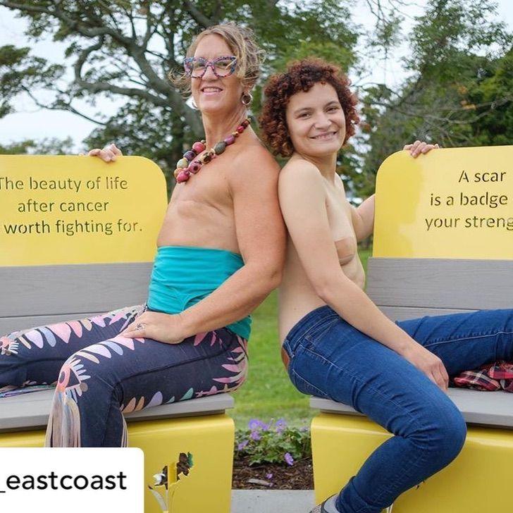 """15 1 - """"Seios não me definem como mulher"""": ela lutou contra o câncer e o venceu e sabe ser feliz com seu corpo"""