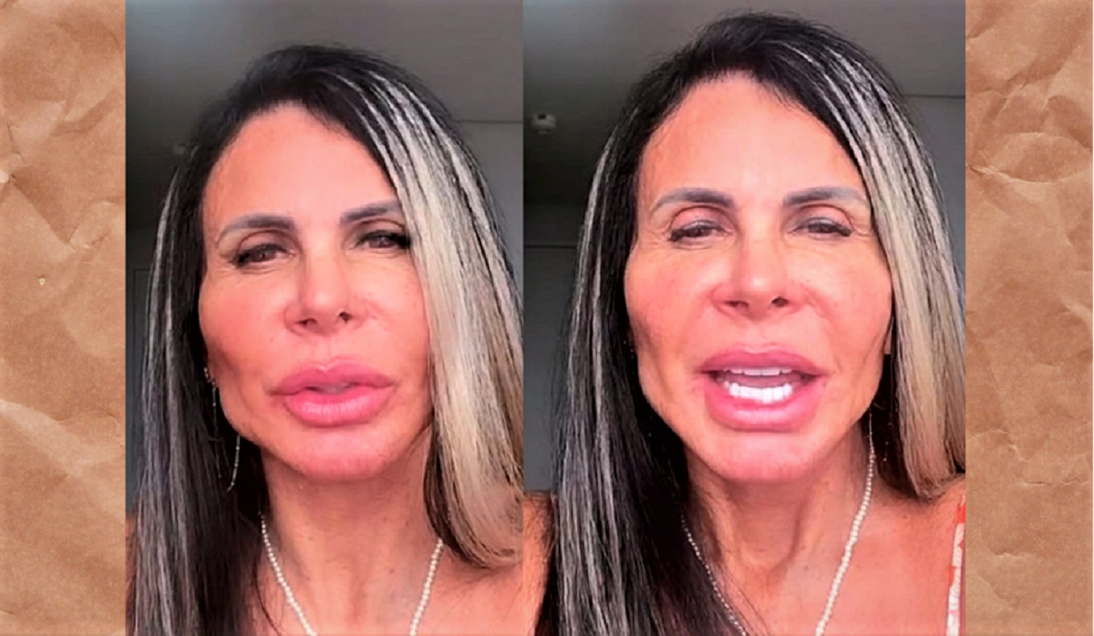 """Untitled design 10 - Gretchen mostra o resultado final de seu rosto uma semana após a """"harmonização Facial""""- (vídeo)"""