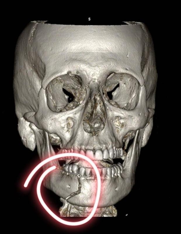 """whatsapp image 2021 01 11 at 21.57.21 1 - Henri Castelli foi covardemente agredido e chora ao mostrar o maxilar fraturado: """"Sensação que minha boca estava pendurada"""" – vídeo"""