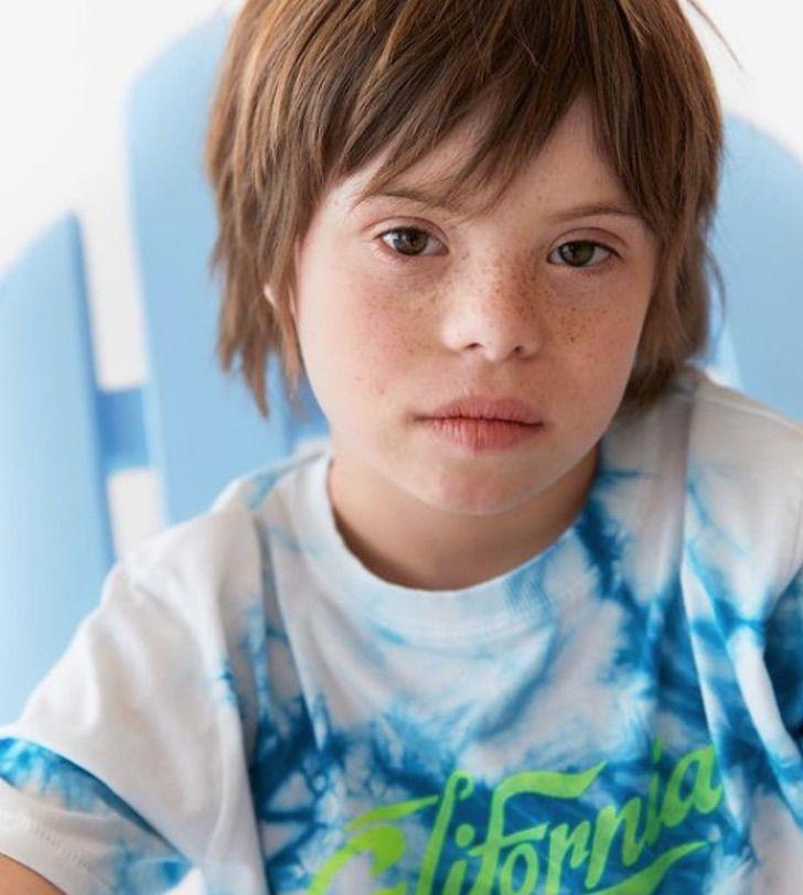 2 - Róscon, o primeiro menino com síndrome de Down a se tornar modelo da Zara