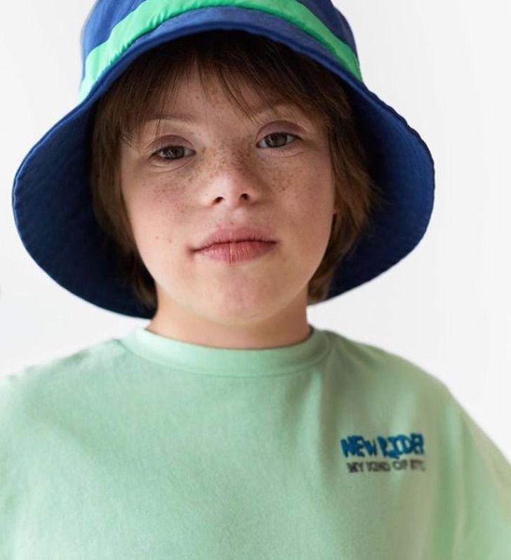 3 - Róscon, o primeiro menino com síndrome de Down a se tornar modelo da Zara
