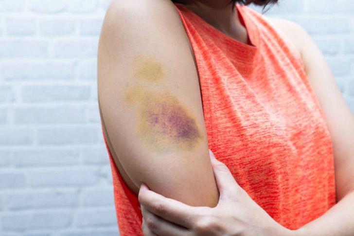 3 8 - Empatia - Vítima de violência doméstica ajuda outras mulheres na mesma situação
