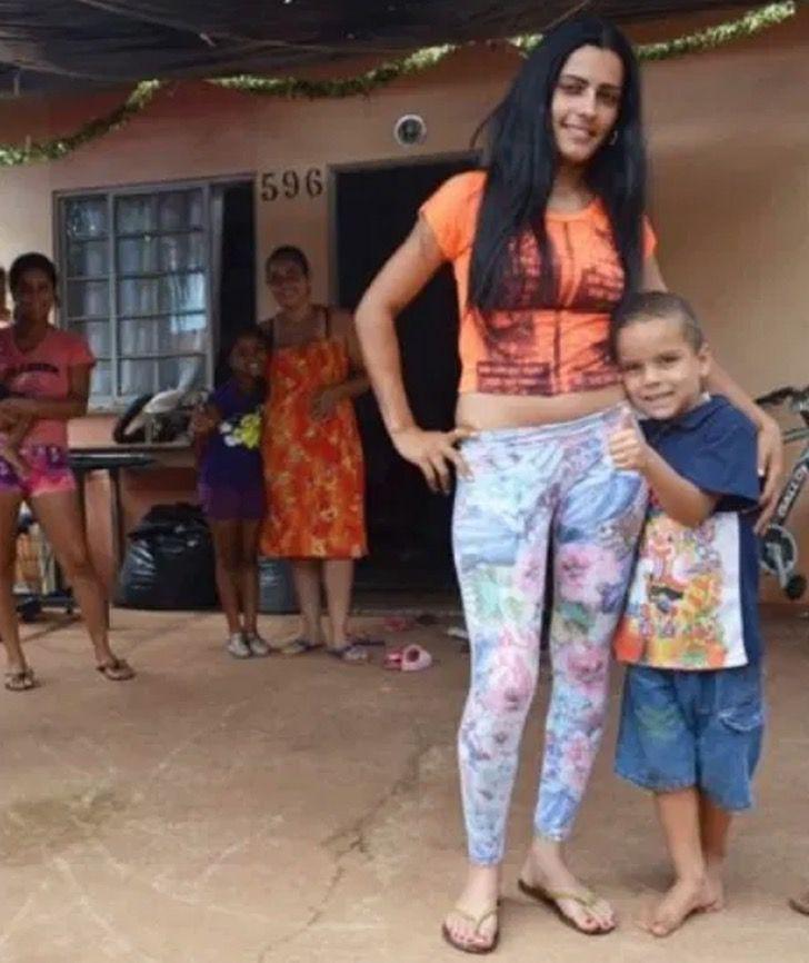 """1 1 - A """"Cinderela brasileira"""": jovem deixou de procurar comida no lixo para ser modelo profissional"""