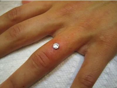 """Captura de Tela 411 - """"Bridal Piercing"""": A tendência para substituir as alianças de casamento. Os médicos não recomendam"""